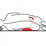 骨盤脇まくら:整体…左右差のきつい腰痛などに